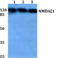 AP06547PU-N - NMDA Receptor 1