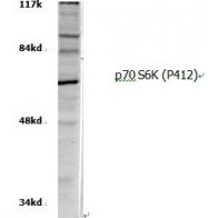 AP06553PU-N - RPS6KB1 / STK14A