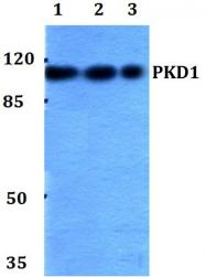 AP06569PU-N - PRKD1
