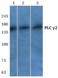 AP06571PU-N - PLCG2