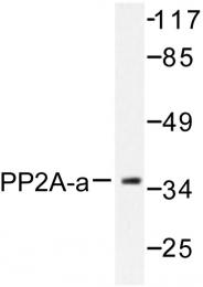 AP06572PU-N - PPP2CA