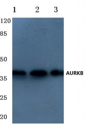 AP06597PU-N - Aurora kinase B