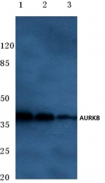 AP06609PU-N - Aurora kinase B