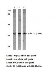 AP06613PU-N - Cyclin D1