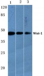 AP06617PU-N - WNT1