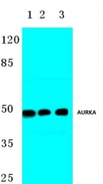 AP06626PU-N - Aurora kinase A