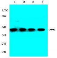 AP06631PU-N - Osteoprotegerin / TNFRSF11B
