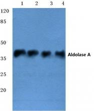 AP06656PU-N - Aldolase A / ALDOA