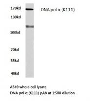 AP06662PU-N - POLA1