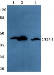 AP06676PU-N - CEBPB