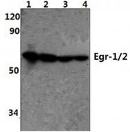 AP06678PU-N - EGR1