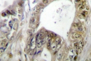 AP06685PU-N - HNF1 alpha / TCF1