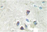 AP06686PU-N - Activin receptor type 1B / ACVR1B