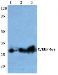 AP06699PU-N - CEBPE