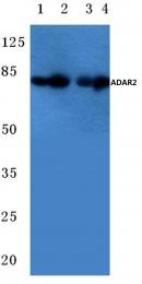 AP06707PU-N - ADARB1 / ADAR2