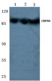 AP06719PU-N - NCBP1