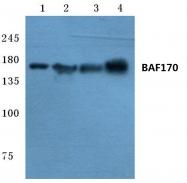 AP06744PU-N - SMARCC2 / BAF170