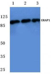 AP06756PU-N - ERAP1 / ARTS1