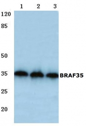 AP06758PU-N - SMARCE1-related protein