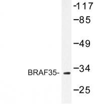 AP06759PU-N - Max-like protein X