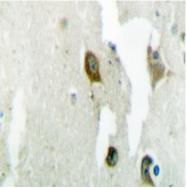 AP06768PU-N - 14-3-3 protein theta