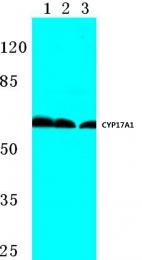 AP06771PU-N - CYP17A1