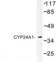 AP06772PU-N - CYP24A1