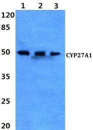 AP06773PU-N - CYP27A1