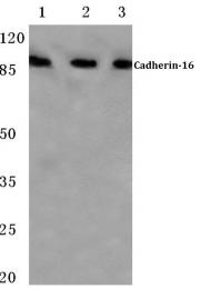 AP06796PU-N - Cadherin-16