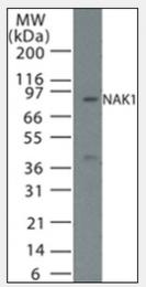 AP07162PU-N - NAK1