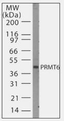 AP07178PU-N - PRMT6 / HRMT1L6