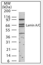 AP07184SU-N - Lamin-A/C (LMNA)