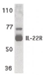 AP07312PU-N - IL22RA1 / IL22R