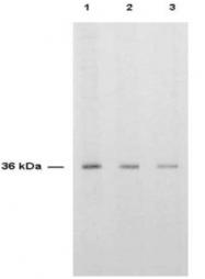 AP08213PU-N - Thymidylate synthase (TS)