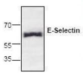 AP08585PU-N - CD62E / E-Selectin
