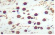 AP08627PU-N - CREB1