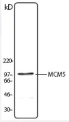 AP08849PU-N - MCM5