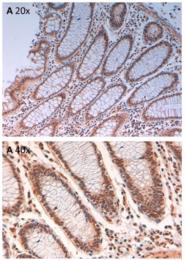 AP09251PU-N - Aurora kinase B