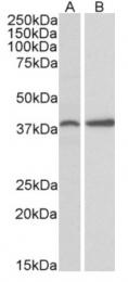 AP09524PU-N - PRKCDBP