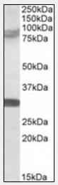 AP09569PU-N - TRIM2 / RNF86