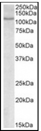 AP09622PU-N - NFATC2