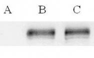 AP10443SU-N - ABCC7 / CFTR