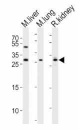 AP13235PU-N - Sclerostin / SOST
