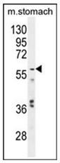 AP13408PU-N - Glypican-3 / GPC3