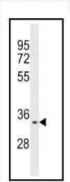 AP13520PU-N - Aurora kinase C