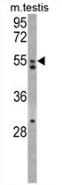 AP13725PU-N - AMHR2