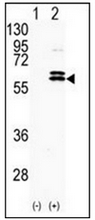AP13743PU-N - CDKL2