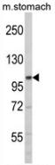 AP13752PU-N - ERN2 / IRE2