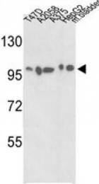 AP14584PU-N - Alpha-actinin-4 / ACTN4