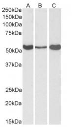 AP15881PU-N - ALDH1